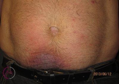 Alergia al níquel (botón del vaquero)