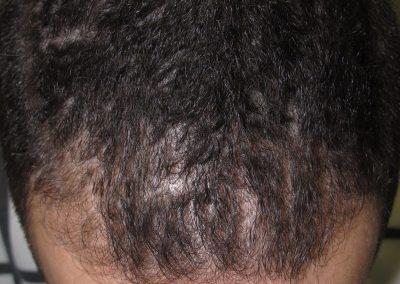 Alopecia masculina incipiente frontal