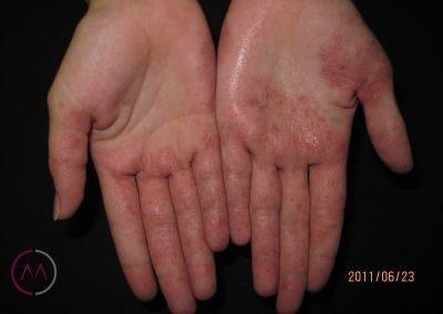 Eccema dishidrótico de manos