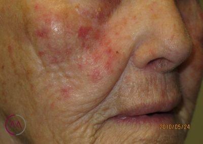 Queratosis actínicas en la cara