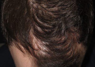 Alopecia masculina moderada