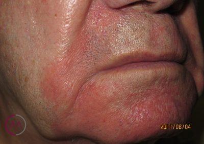 Dermatitis seborreica extensa en la cara