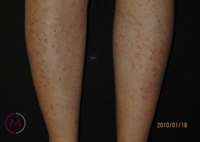 Foliculitis por depilación en las piernas