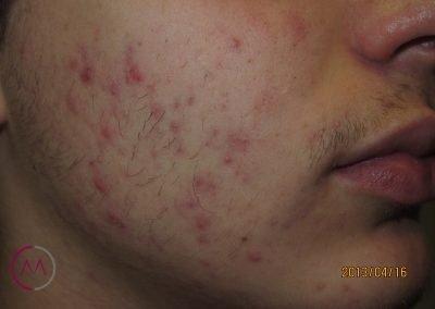 Foliculitis de la barba