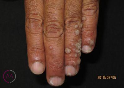 Verrugas múltiples en la mano