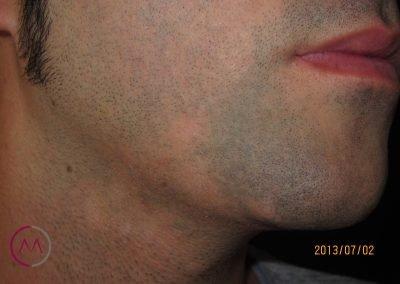 Alopecia areata de la barba