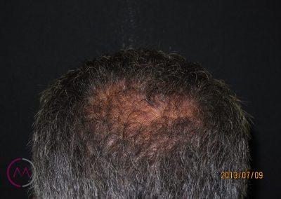 Alopecia masculina incipiente occipital