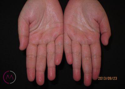 Hiperhidrosis palmar