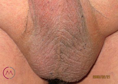 Neurodermitis del escroto