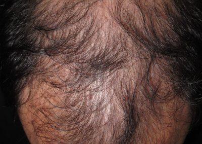 Alopecia masculina avanzada