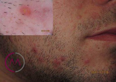 Pseudofoliculitis de la barba (pelo encarnado)