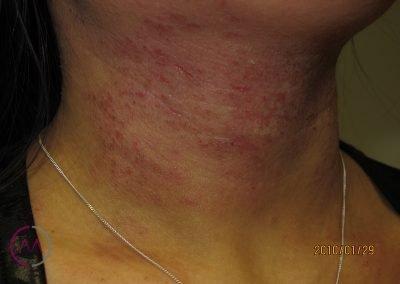 Dermatitis atópica del adulto