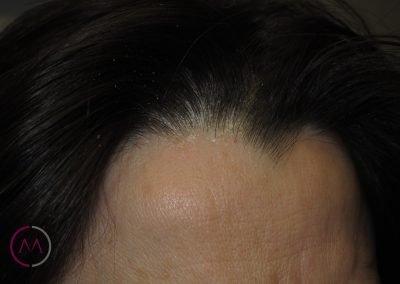 Dermatitis seborreica del cuero cabelludo