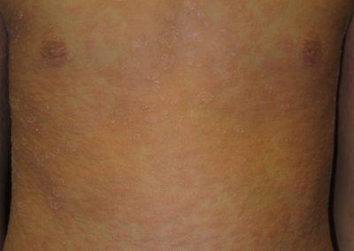 Pitiriasis rosada generalizada
