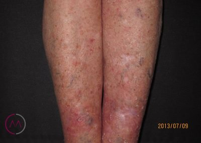 Queratosis actínicas en las piernas