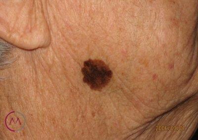 Léntigo melanoma