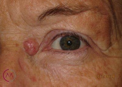 Carcinoma basocelular periocular