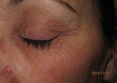 Alergia a sombra de ojos