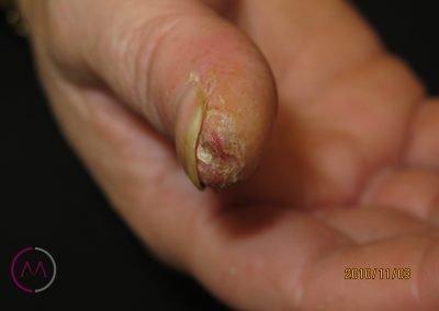 Grietas en el pulpejo del dedo