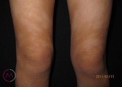 Hipopigmentación en la Dermatitis atópica