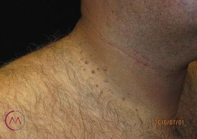 Fibromas del cuello