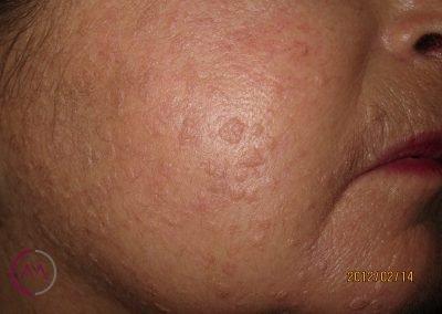 Verrugas planas (paciente con defensas bajas)